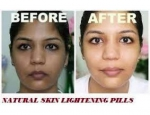 +27733404752  Skin Lightening and Bleaching (South Africa)