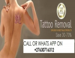 4 IN 1 NATURAL Tattoo Removal Cream for sale CALL ON +27(63)0716312 IN SOUTH AFRICA